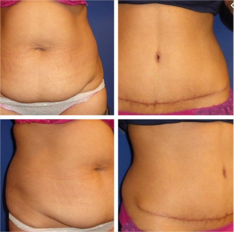 Abdominoplastie-paris